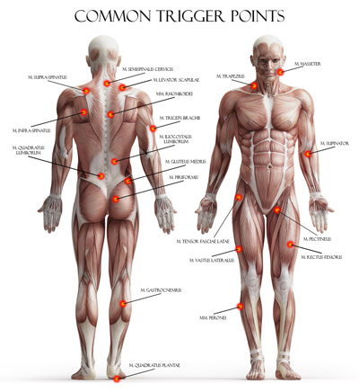 trigger-points